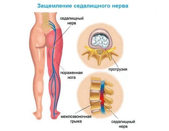 Atlantto-telje uhise artroos, mis see on Jalgade tootlemise liigeste artroos