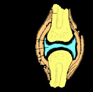 Trammi liigeste valuga Salv artroosi jalgade ravis