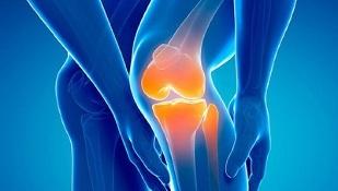 Kogemus artroosi ravis Kasi valu parast rasket tood