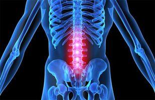 blokaadid liigeste ravi Parim vahend artroosi raviks