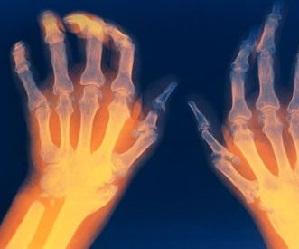 Oendusprotsess liigeste artroosiga