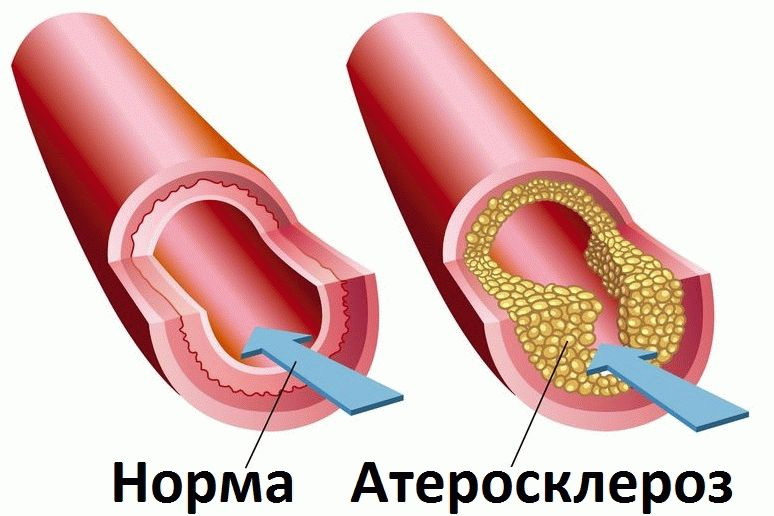Rettabolil liigeste raviks Anesteetiline osteokondrose