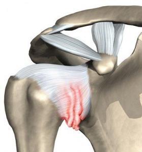 Raakige liigeste ravi Valu kate sormede liigestes.