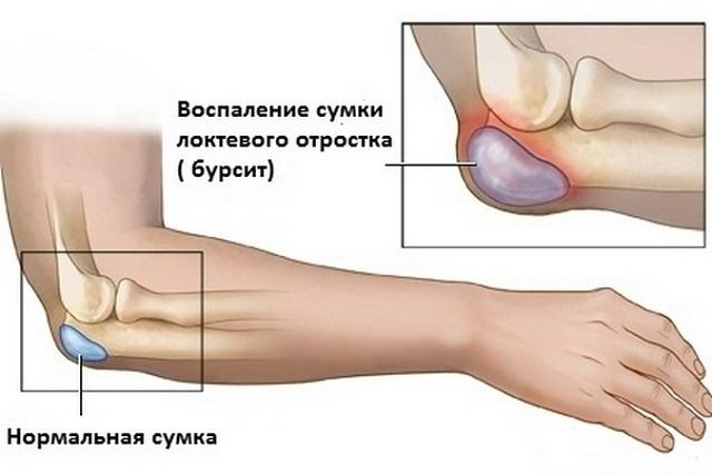 Areng kuunarnuki liigese parast vigastusi