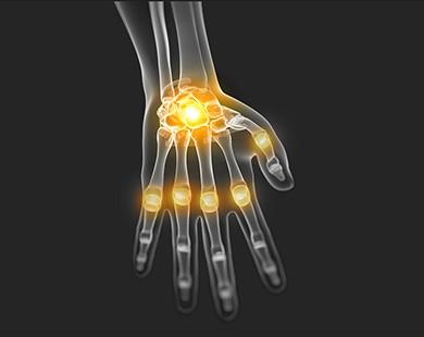 Ainuuksi valus liigesed ja lihased kui valu uhendused valu