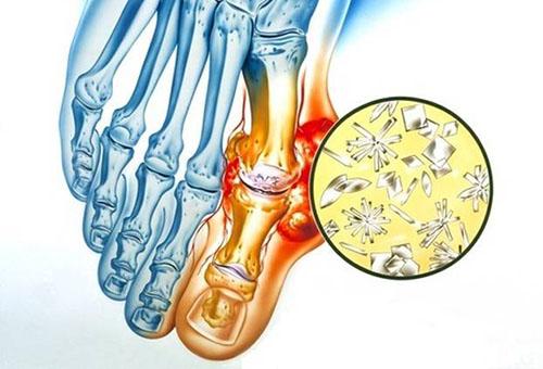 Kuidas eemaldada liigesepoletik jalgsi kodus Mida teha, kui liigend on kaes haiget