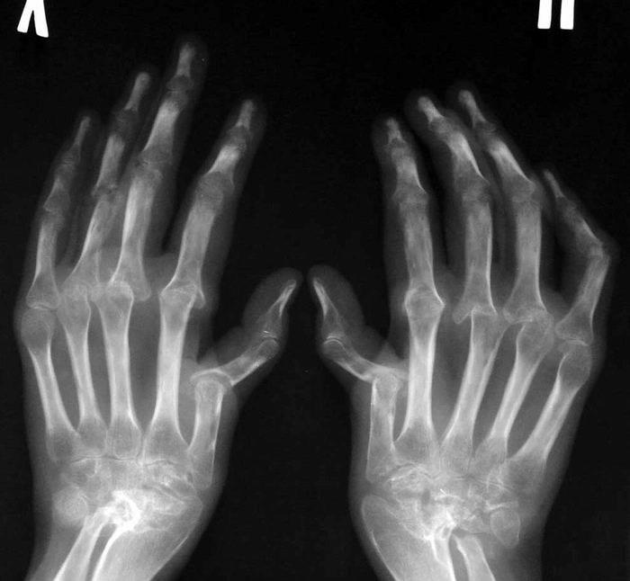 Artriidi harja vasak kasi Polve tarude intripping