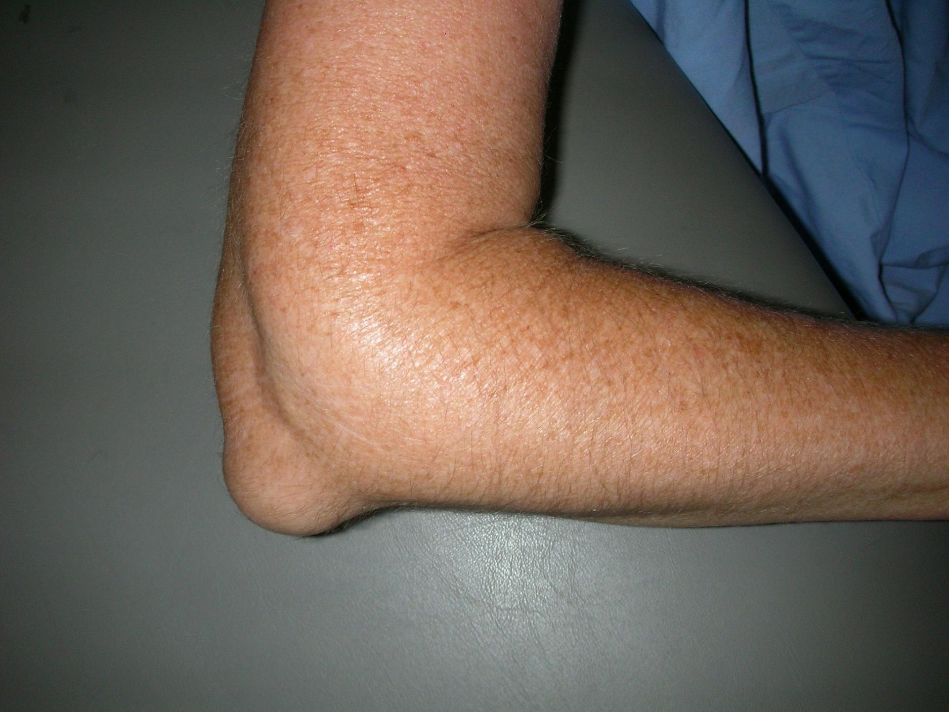 Ammoniaagiga liigeste ravi Hapu vasakul kuljel ja liigesed
