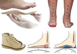 Valu jalgade jalamil