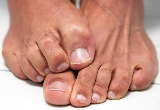Jalgliidete poletik Folk-ravi