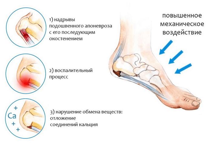 Valu juures liigeste geel Kaed keskmise sorme liigese