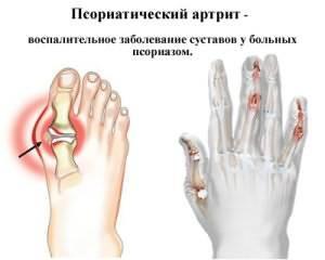Tooriistad valu liigeste ulevaateid