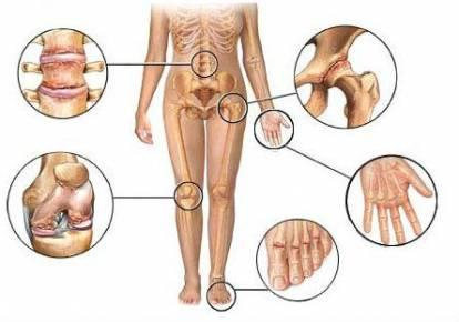 Haiged liigeste ravi Millised tooted on liigeste haiguste kasulikud
