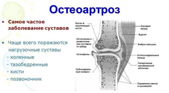 Sellest, mis juhtub artriidi liigesed