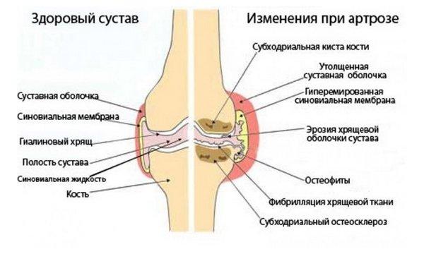Artrosi ola ravi
