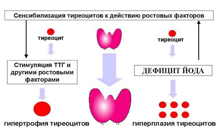 EUTICOX valu liigestes Tosine valu liigestes Kuidas valu eemaldada