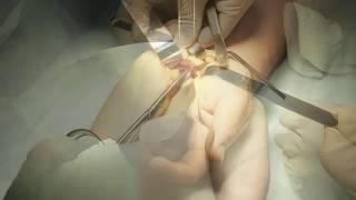 EUTICOX valu liigestes Kui kogu keha liigesed haiged