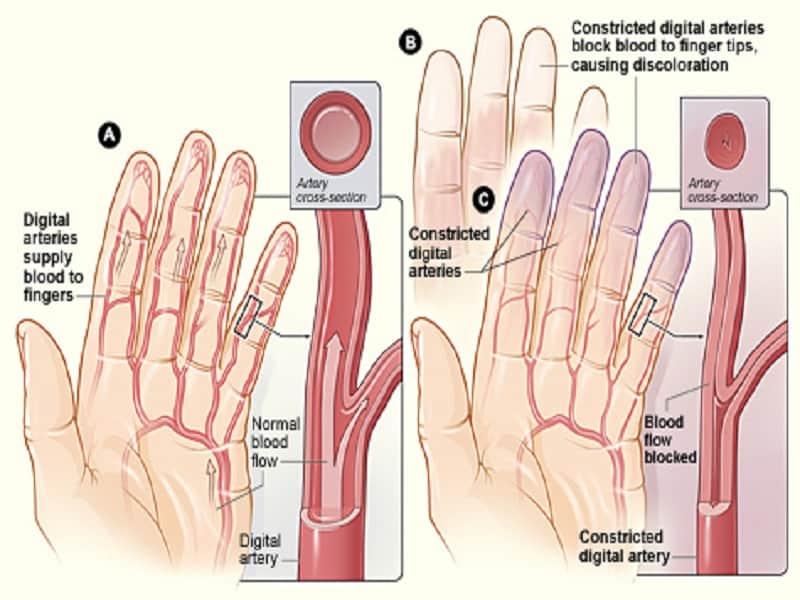 Liigeste artroos wiki valu puusaliigese kui raviks