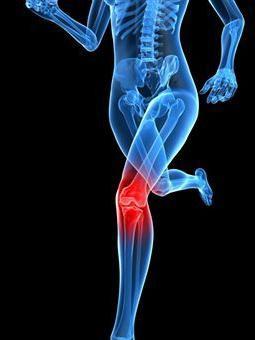 Osteokondroos kuunarnuki liigese Juhtmete ristiku ravi