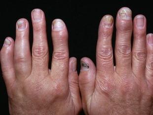 Kitsepiim liigeste raviks Folk viisil artriidi liigeste raviks