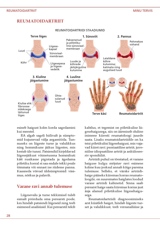 Reumatoidartriit sormega