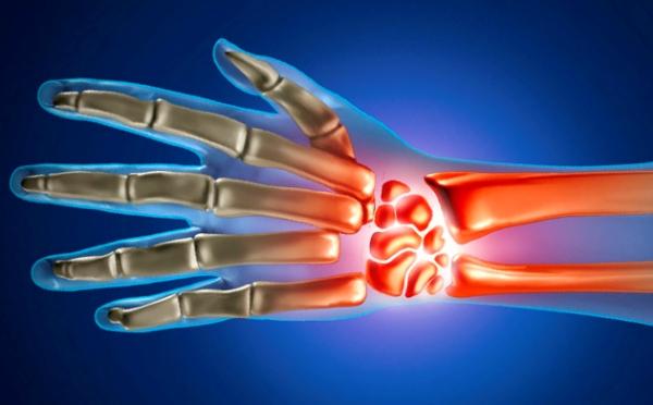 Valus sormeotste liigeste valu Liigeste valude loetelu