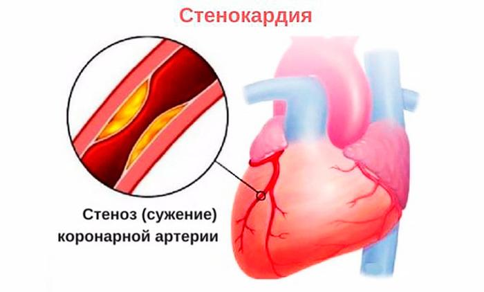 Hondroksiidi liigeste geel Polve valutab salvi