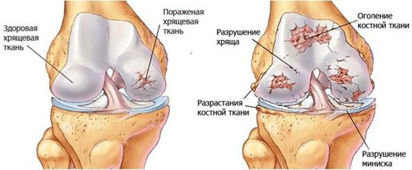 Inimeste meetod artroosi ravi