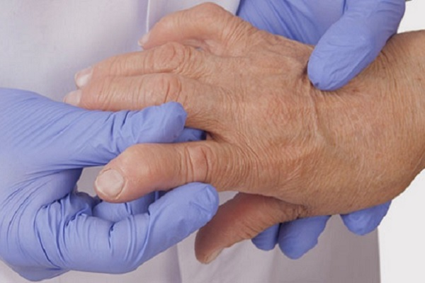 Hips artriidi valus liigesed