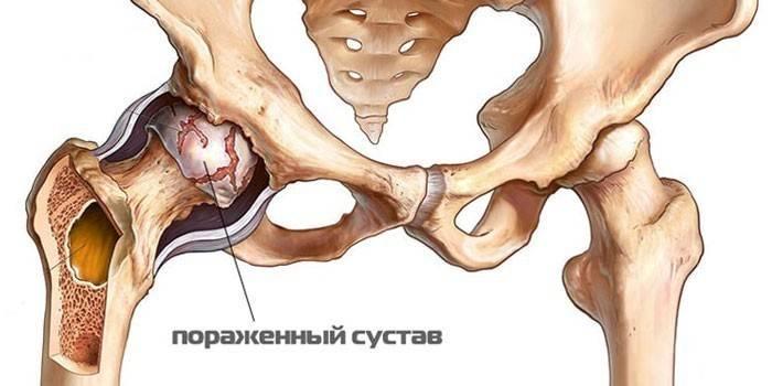 Kate liigeste vigastuste ravi