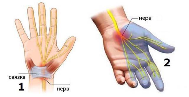 Kelbow liigese valu on innukas sormed glukoosamiini kondroitiini komplekshind osta