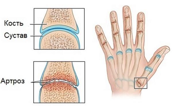 Liigeste magnetite ravi geelid osteokondroosi ravis