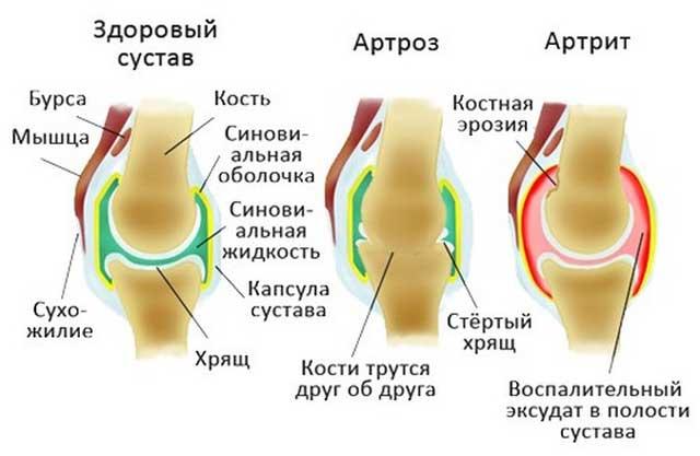 Krooniline liigesevalu ravi Nao uhise ennetamise artriit