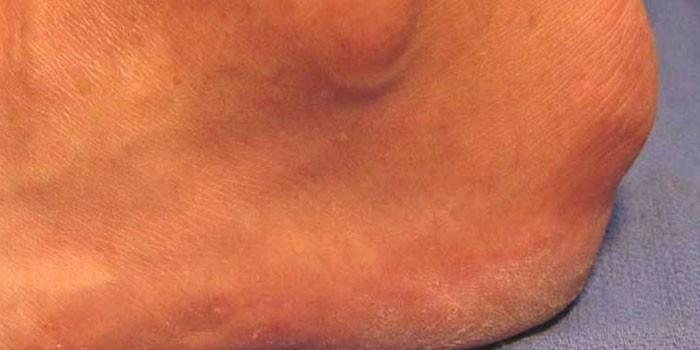 Kuidas eemaldada liigesepoletik jalgsi kodus Uhise sorme poletik