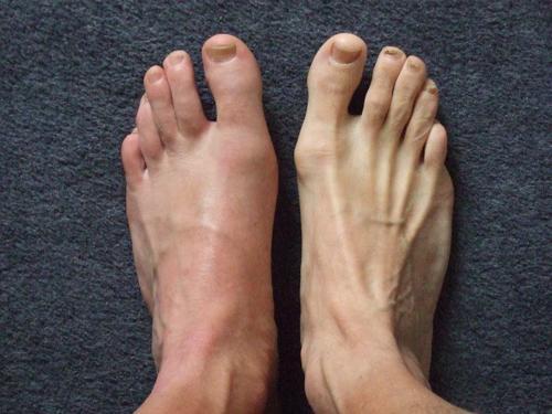 Kuidas eemaldada liigesepoletik jalgsi kodus Slare liigesed