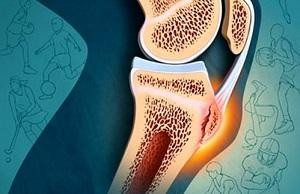 valus liigesed, mida artriit artriidid