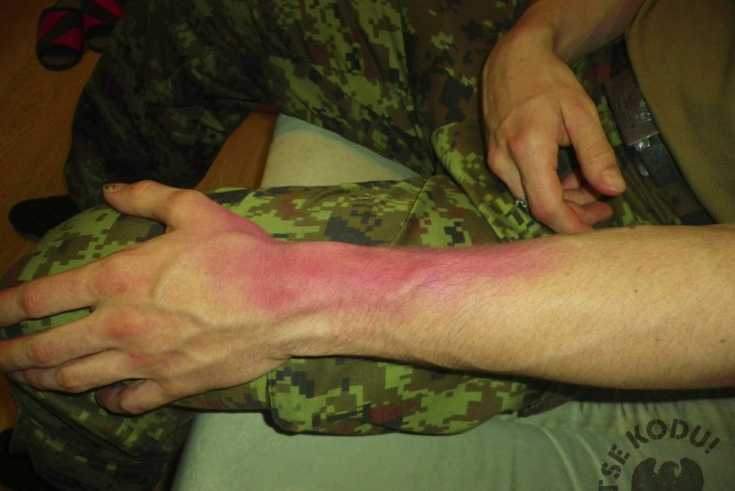 Kuidas eemaldada polvelihast poletiku Valu pohjuste ja ravi liigeste valu