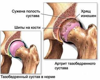 Esimese Tibaliigese artroos Golden vuntsid sorme artriit