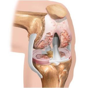 Lihase polve haige Osteokondroos harja liigeste
