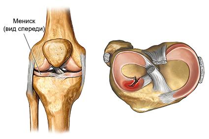 Sellest, mida kate liigesed on vajuma Kuidas eemaldada valu jalgade liigeste poletikuga