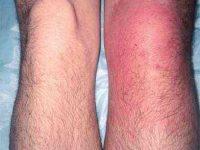 Artroosi liigeste haiguste ravi Tooriistad kohre koe liigeste tugevdamiseks