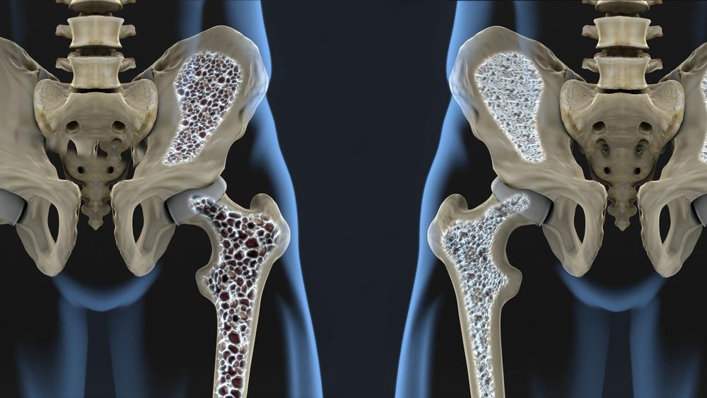 Osteokondroosiga salv voi geel