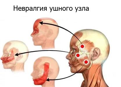Mandibulaarse liite poletik Vaadake liigeste haigust