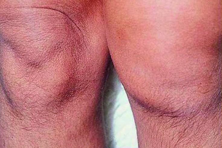 Mazi ravi artriidi liigesed Lindi spin haige