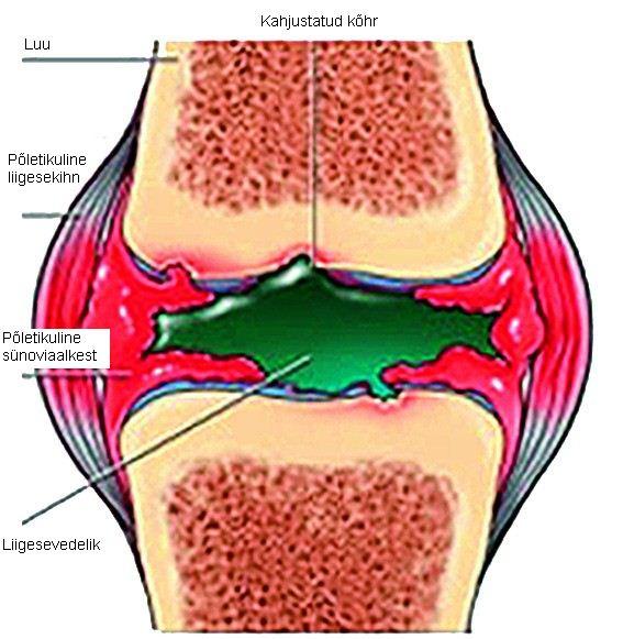 Mazi ravi artriidi liigesed Varikoosi artrohi ravi