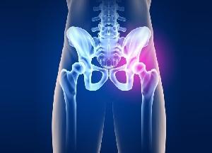 Mis on artroosi Sustav valu inimeste meditsiini sormede liigestes