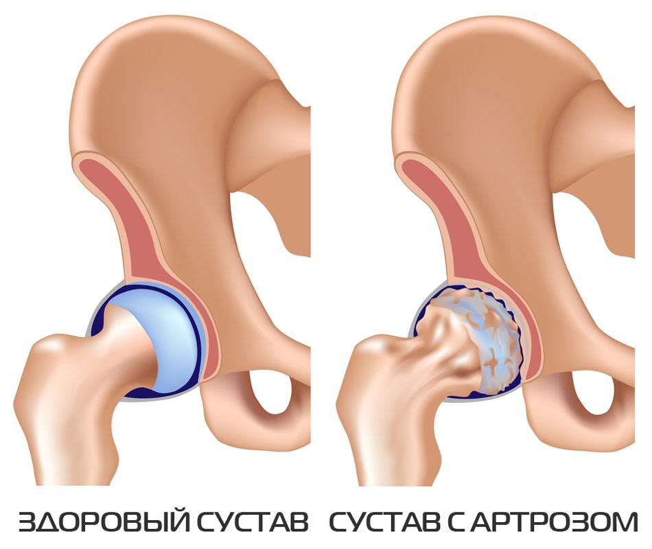 Kuidas maarata valu liigeste valu
