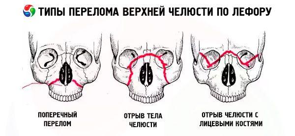 reumatoidartriit, mis liigesed