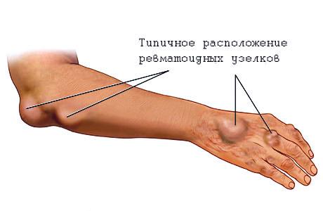 NEUMYvakin liigeste ravi