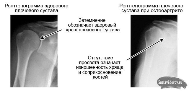 Ola artroos toetab tugevat valu